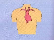 การผ่าตัดเปลี่ยนหัวใจ