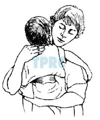 การเคาะปอดเพื่อระบายเสมหะในเด็กเล็ก