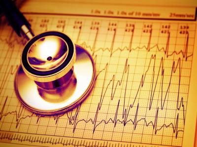 ภาวะหัวใจเต้นผิดจังหวะ อันตรายที่อย่ามองข้าม